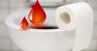 Кровотечение при геморрое