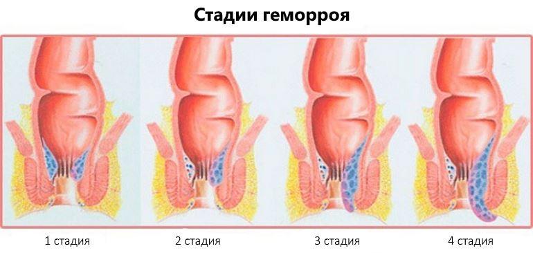 народное лечение геморроя 3 стадии