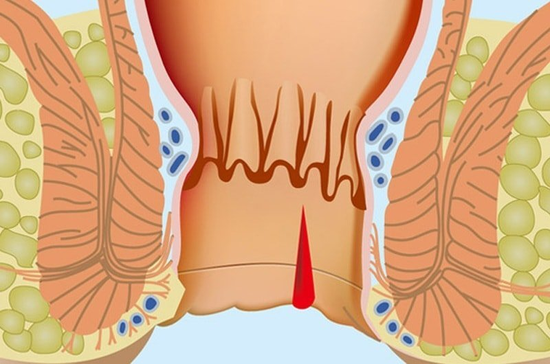 Геморрой - определение заболевания