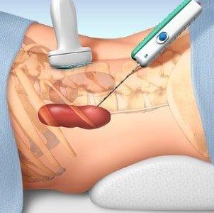 Профилактика воспалительных процессов в кишечнике
