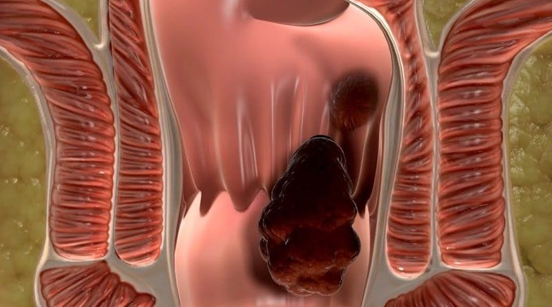 Лечение геморроидальных узлов