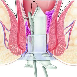 Геморроидопексия по удалению геморроя