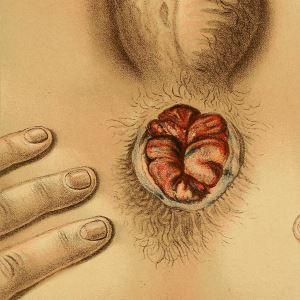 Когда показано выполнение тромбэктомии геморроидального узла