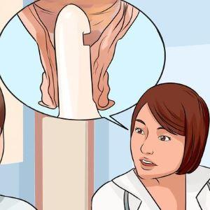 Особенности применения свечей Кетонал