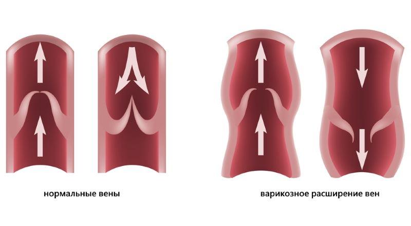 В чем заключается механизм появления геморроидальных узлов