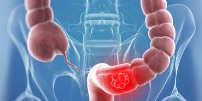 Рак толстой и прямой кишки