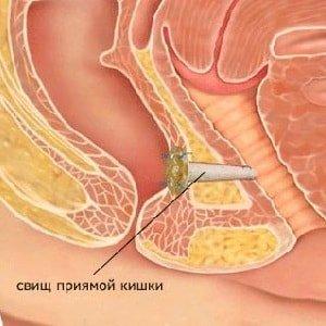 Причины образования ректальных свищей