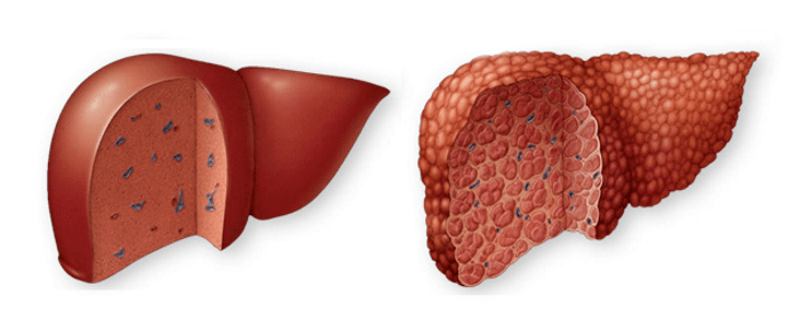 Механизм развития цирроза печени