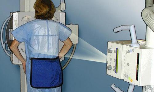 Перед операцией пациентам обязательно нужно сделать флюорографический снимок груди