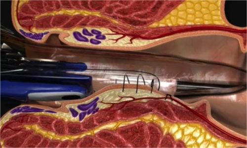 Дезартеризация – современная и очень эффективная техника нехирургического лечения воспалённых венозных скоплений