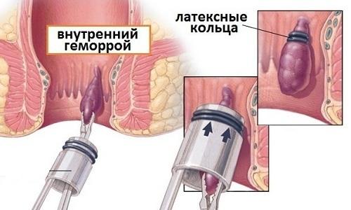 Смысл процедуры заключается в пережатии «ножки» геморроидальных узелков особыми окружностями из латекса