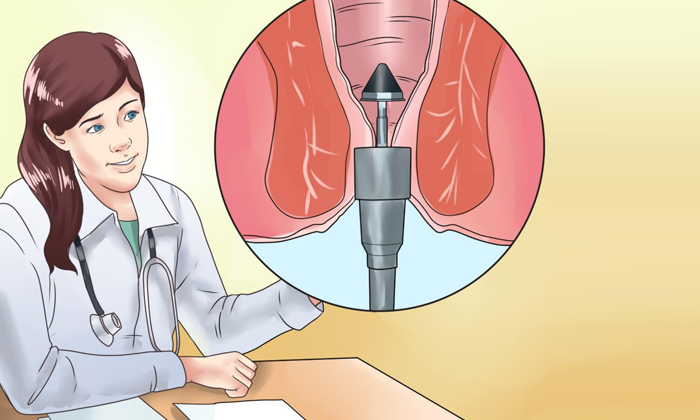 При дезартеризации происходит перетяжка артериальных сосудов, которая помогает прекратить снабжение кровью геморроидальных узелков