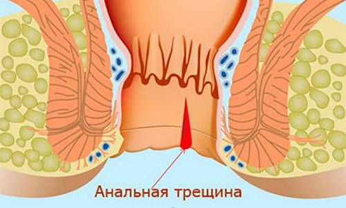 Геморрой после естественных родов может сопровождаться образованием анальных трещин