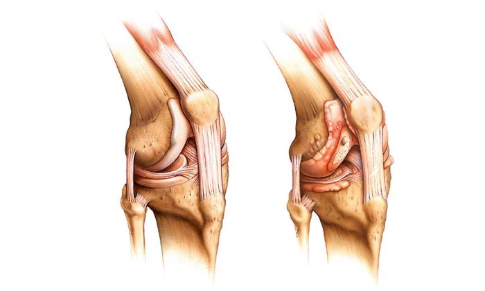 Препарат может помочь вылечить артрит