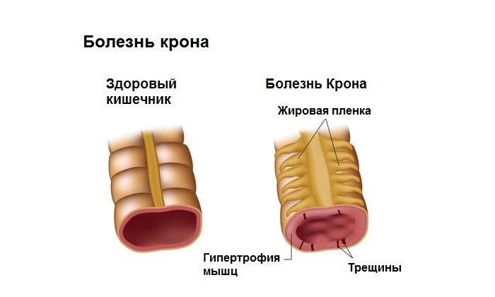 Причиной поноса может быть болезнь крона