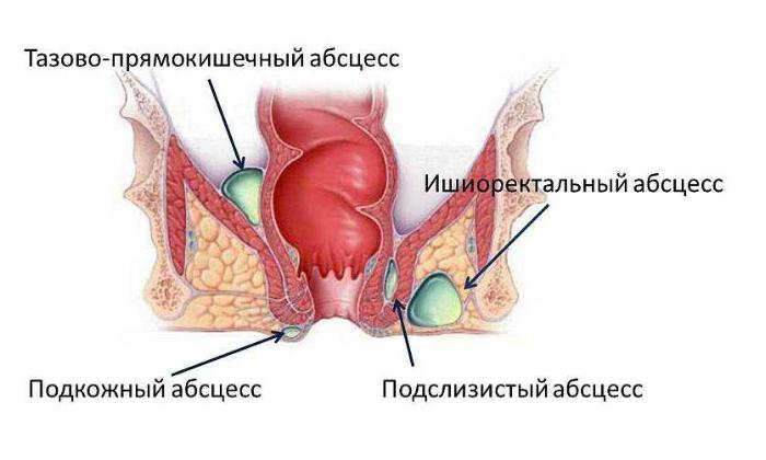 Увлечённость ректальным соитием приводит к параректальному абсцессу