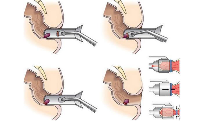 Лигирование шишек латексными кольцами назначают со 2 стадии заболевания