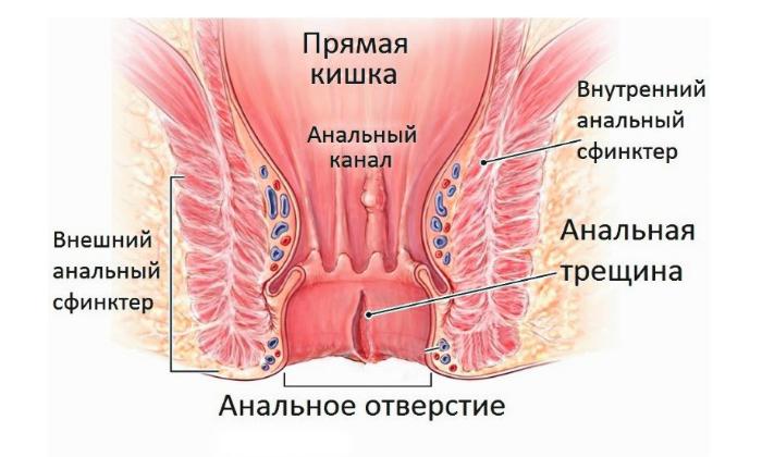 Увлечённость ректальным соитием приводит к механическому повреждению анального сфинктера