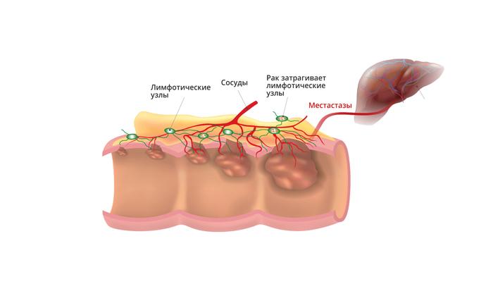 Слизь может появиться при опухоли толстого кишечника