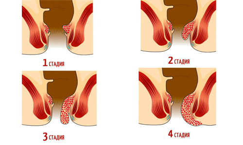 Четвертая стадия характеризуется выпадением узлов, которые не могут обратно вправиться ни самостоятельно, ни усилиями человека