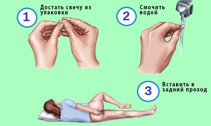 Лежа на левом боку с приведенным правым коленом к груди, пальцами правой руки введите свечу в задний проход