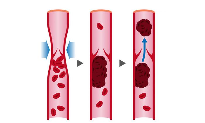 Диклофенак предупреждает образование тромбов в крови