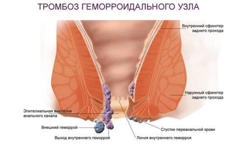 Для наружного геморроя характерно тромбирование