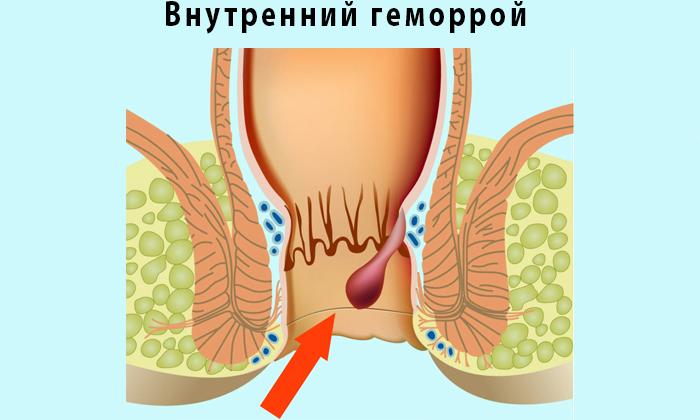 На начальных стадиях варикозное расширение геморройных вен практически не беспокоит пациентов