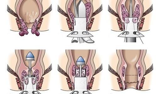 Геморроидэктомию применяют на последних стадиях недуга, когда человек не может нормально жить