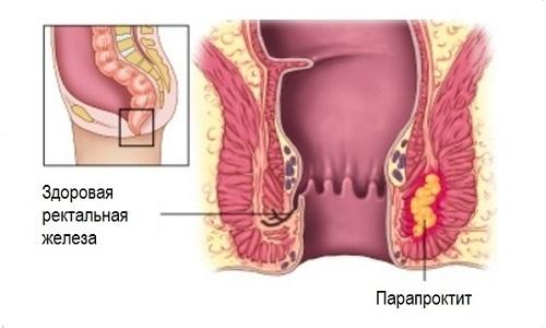При парапроктите использование лигирования геморройных узелков кольцами запрещено