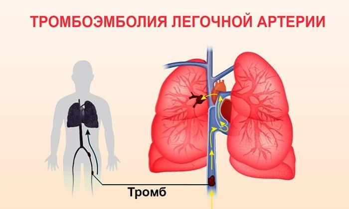 Свечи Релиф противопоказаны при тромбоэмболии