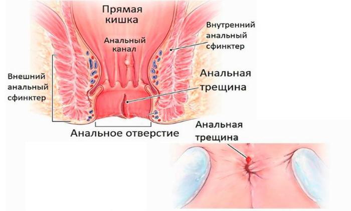 В проктологической практике гидрокортизоновую мазь назначают для лечения надрывов заднего прохода