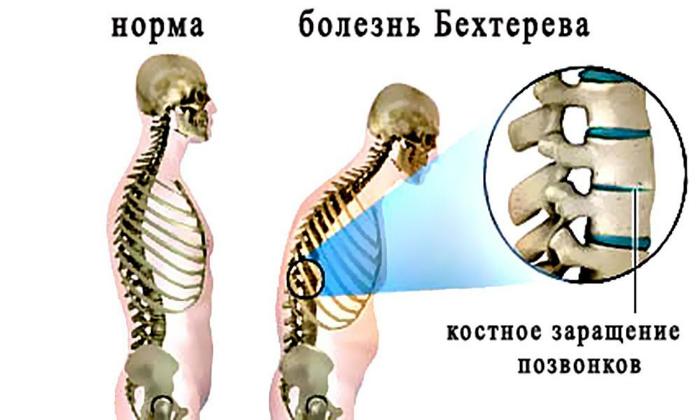 Свечи Вольтарен показаны при болезни Бехтерева
