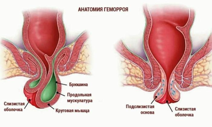 В проктологической практике гидрокортизоновую мазь назначают для лечения воспаления наружных и внутренних геморроидальных шишек