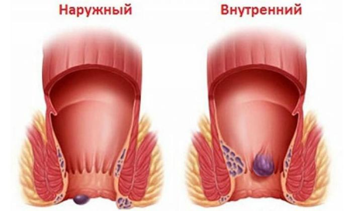 При геморрое показаниями к применению средства могут быть внутренние и наружные геморроидальные шишки