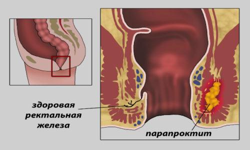 Трещины прямой кишки могут осложняться парапроктитом