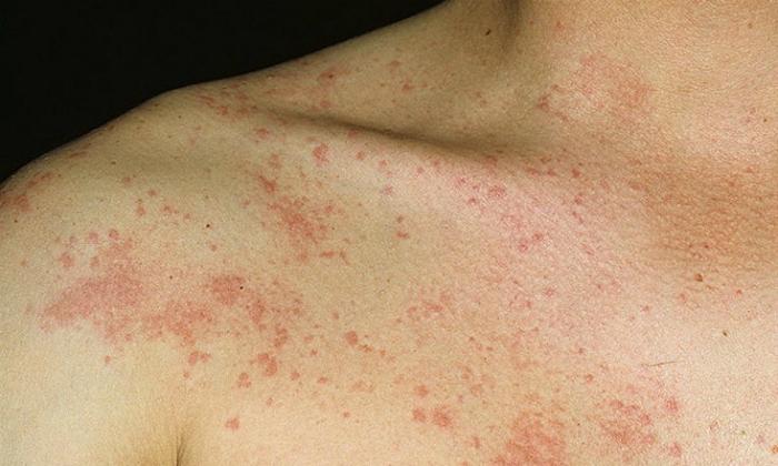Несмотря на природное происхождение жженых квасцов, во время лечения у некоторых пациентов может проявиться аллергия на эти вещества в виде крапивницы