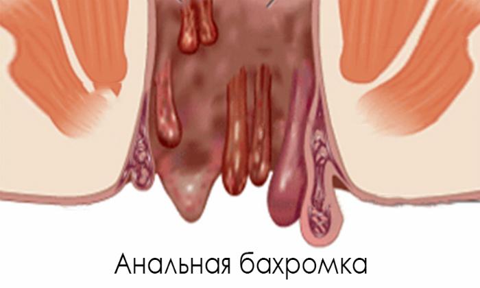 Анальные бахромки представляют собой свисающие плотные складки в районе ректального отверстия, которые напоминают цветочные лепестки либо полипозные наросты