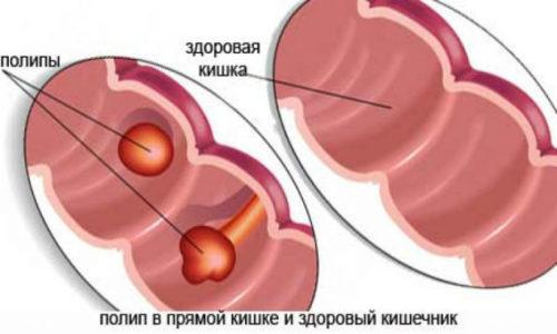 Хронические течение геморроя и анальных трещин сопровождается уплотнённостью в прямой кишке, напоминающую полипы