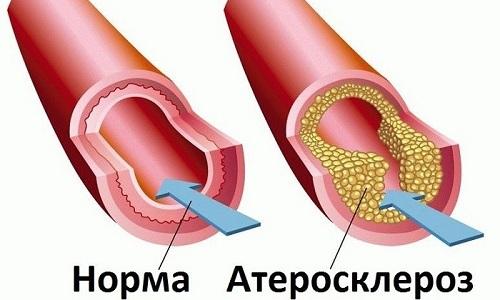 Колит может возникнуть из-за развития атеросклероза