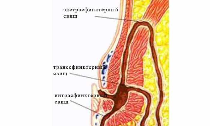 У больных болезнью Крона могут развиваться свищи