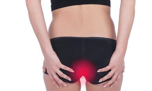 При остром дистальном колите появляются боли в заднем проходе из-за спазма его мышц