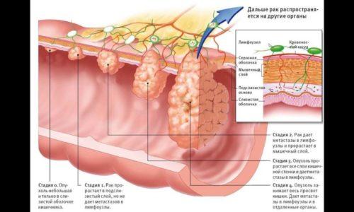 Под раком толстой кишки подразумевают группу злокачественных новообразований, которые формируются из слизистого эпителия кишечника