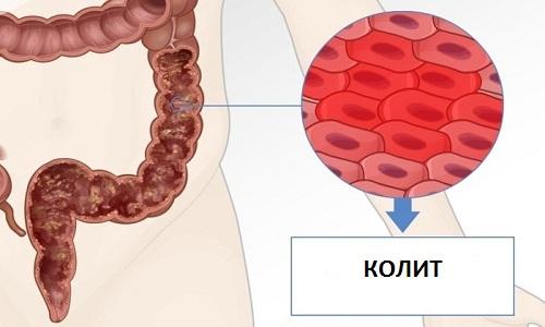 Колит – это воспаление слизистого слоя толстого кишечника, которое отличается по течению, этиологии, локализации и форме нарушения моторной функции кишки
