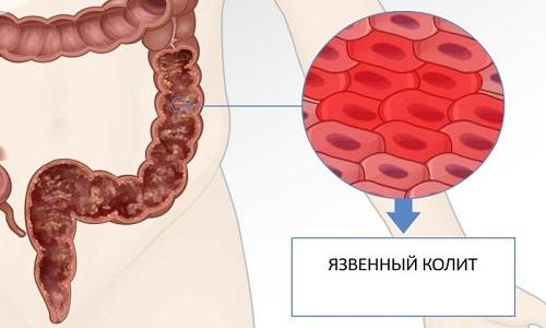 Повышает риск заболевания раком толстой кишки неспецифический язвенный колит