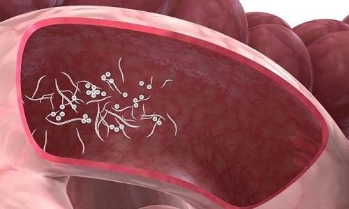 Причина трещин прямой кишки у детей - гельминтоз