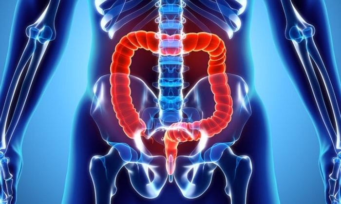 Симптомы, диагностика и методы лечения рака толстой и прямой кишки