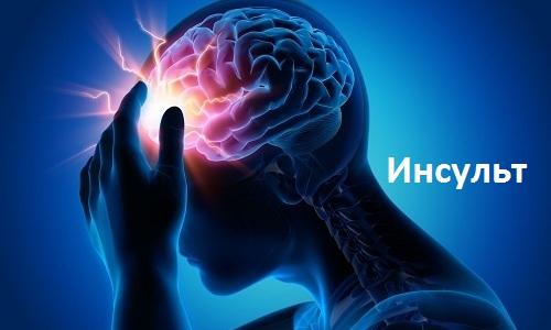 Неврогенные запоры свойственны больным с патологией центральной нервной системы