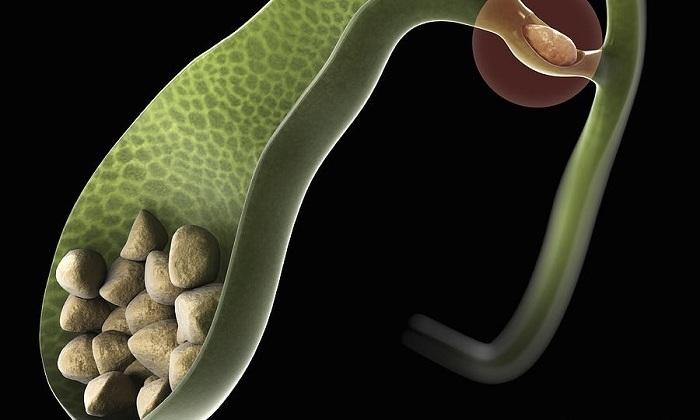 Болезнь в некоторых случаях развивается из-за калькулезного холецистита