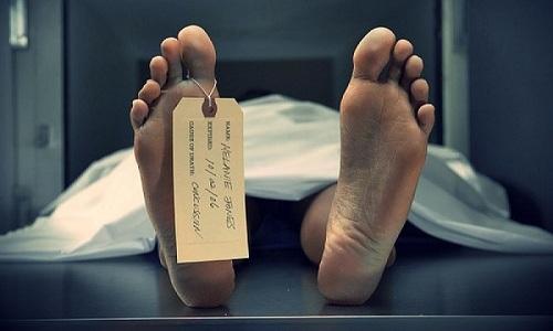 Если четвертой стадии развития цирроза не будет проведена трансплантация печени, то пациент погибнет